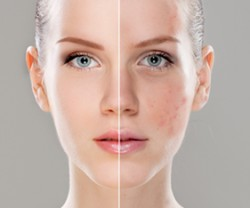 Australian Laser Clinic | Laser & Skin Clinics Melbourne Australia