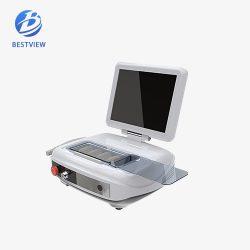 Portable 4D HIFU Machine