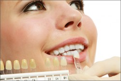 Laser Teeth Whitening Melbourne CBD | Teeth Whitening Cost Melbourne